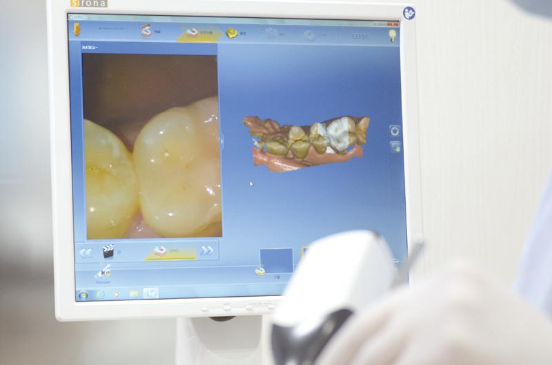 和歌山こまつ歯科インプラントクリニックのCT最新機器